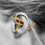nada-behandling-akupunktur